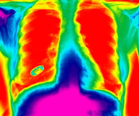 Asbestos Lung Cancer Rtk Environmental Group