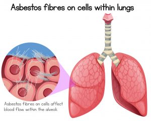 asbestos lungs